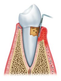 Periodontitis in Nashville, TN