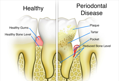 Gum Disease and Tooth and Bone Loss Louisville, KY