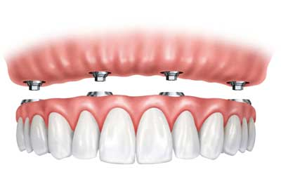 Implant Supported Dentures in Nashville, TN