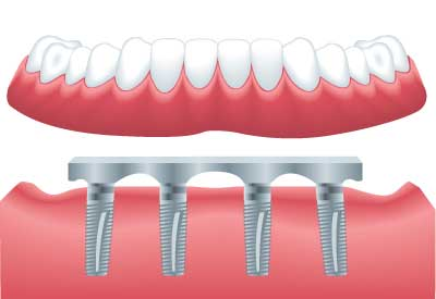 Implant Supported Dentures in Louisville, KY