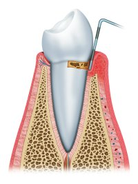 Gum Disease in Nashville, TN